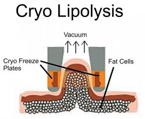 کرایولیپولیز چیست